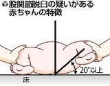 股関節脱臼images.jpg 赤ちゃんの.jpg